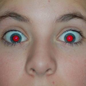 Prečo majú albíni červené oči?